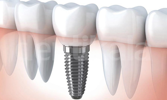 بررسی چهار نوع بریج دندان