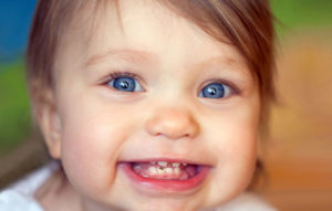 علت سیاه شدن دندان کودکان و درمان آن